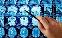 德国成功案例分享:58岁脑干胶质瘤,不想认命!