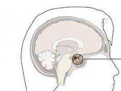 大于3cm的垂体瘤,怎么治疗才能更彻底、不复发?
