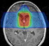 儿童常见脑瘤质子治疗效果实例解析