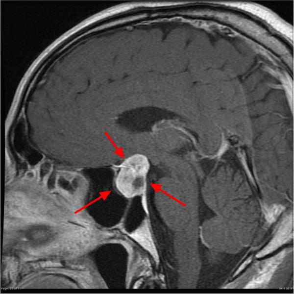 国外有好的治疗脑垂体瘤的方案吗?女性脑垂体瘤