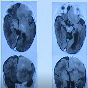 半侧巨脑综合征怎么治?国际儿童颅底学会创始人Di Rocco教授解读