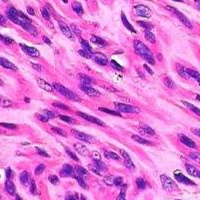 胶质瘤病理检查报告单揭示疾病本身哪些问题?