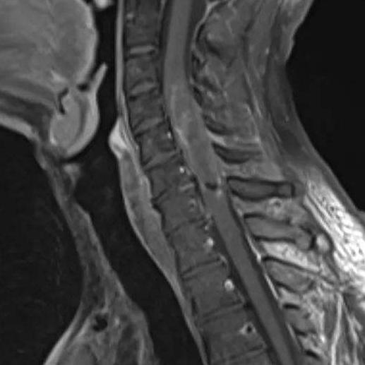 脊髓肿瘤术后需要注意哪些?