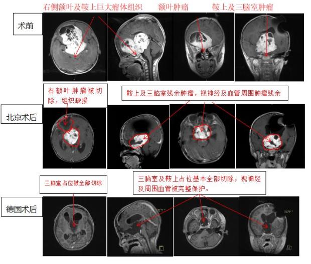 视神经胶质瘤案例
