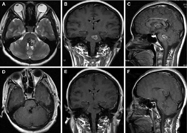 颅内海绵状血管瘤案例