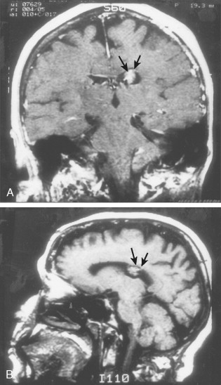 海绵状血管瘤