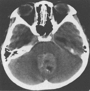髓母细胞瘤