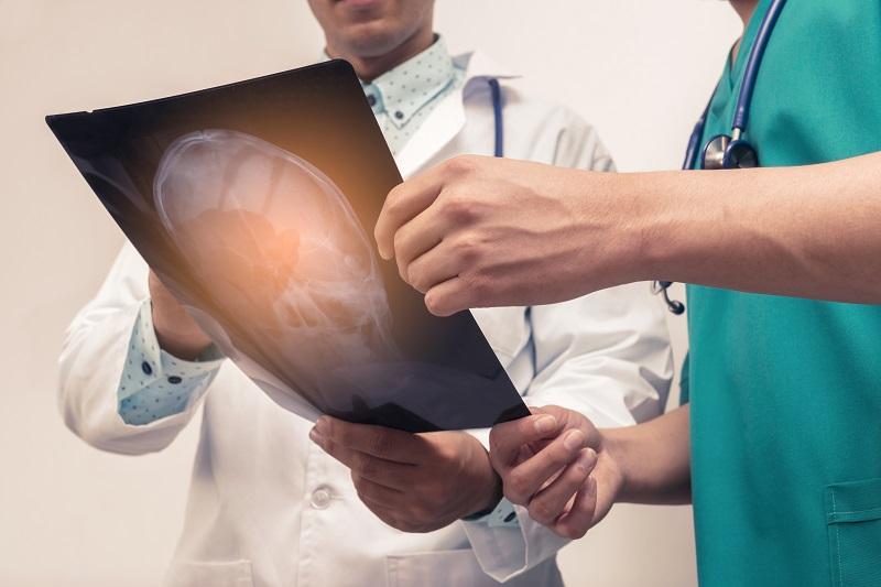 得益于不同的手术技术,脊索瘤高治愈患者实例