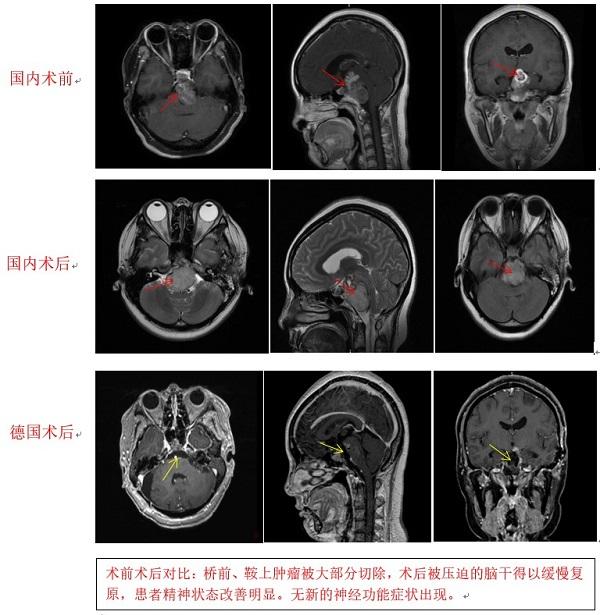 脊索瘤的治疗:手术带来的更长寿命