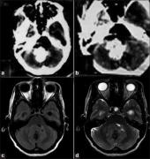 髓母细胞瘤钙化是什么意思