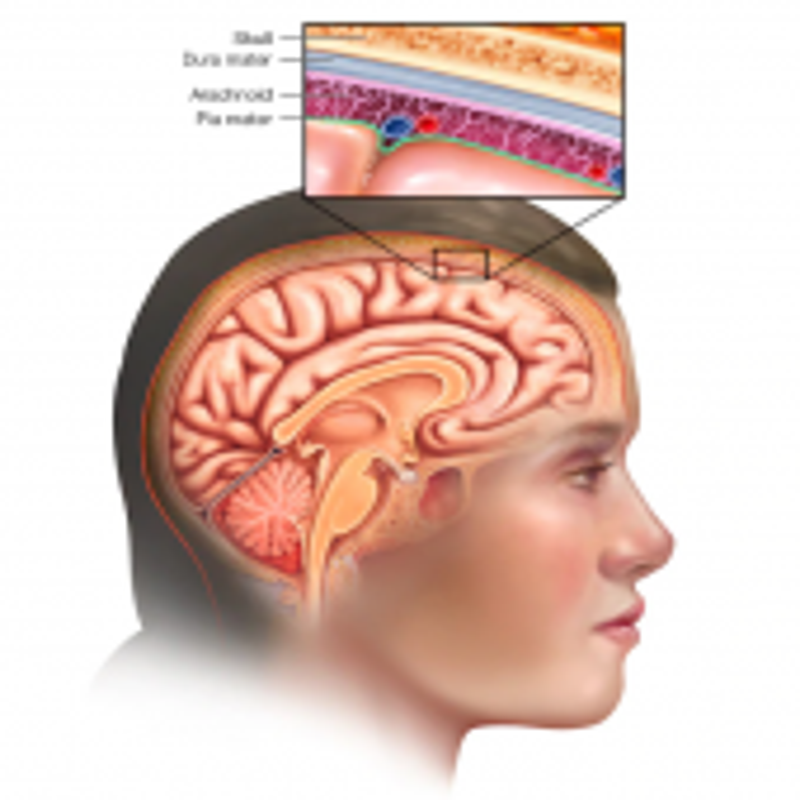 脑膜瘤是怎么引起的?脑膜瘤早期症状有哪些?