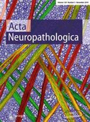脑干胶质瘤液体活检-Acta Neuropathologica