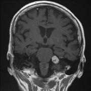听神经瘤是怎么形成的?有哪些症状