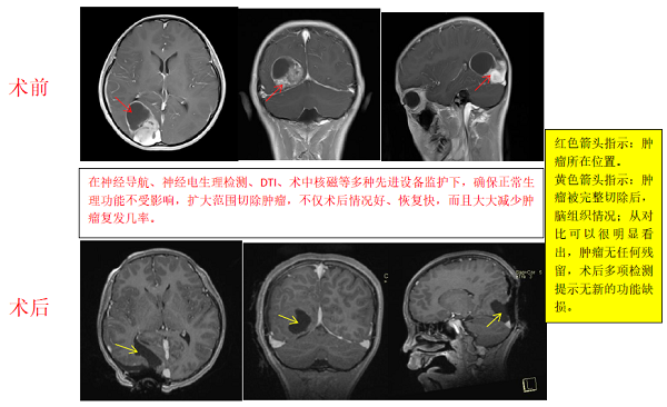 胶质瘤案例,胶质瘤手术