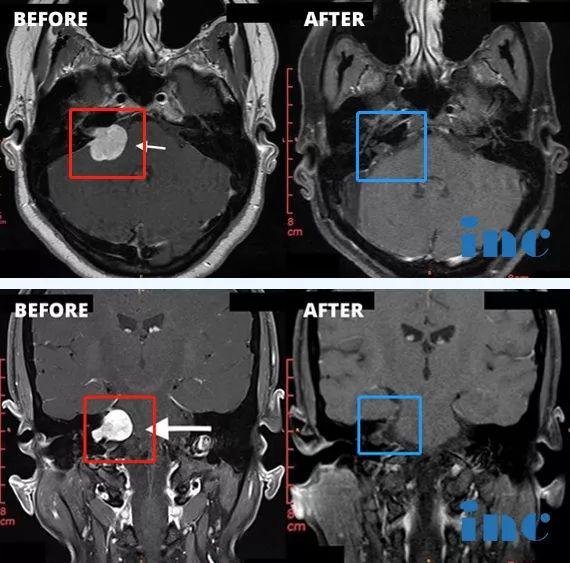 听神经瘤案例,听神经瘤手术