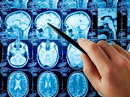 治疗脑垂体瘤比较好的医院有哪些?出国治疗脑垂