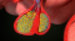什么样的人容易得垂体瘤?垂体瘤会自愈吗?