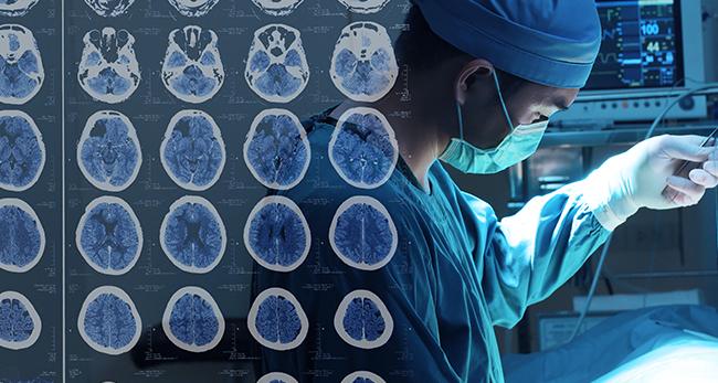 听神经瘤的主要临床表现有哪些?