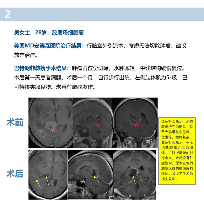 胶质瘤治疗案例