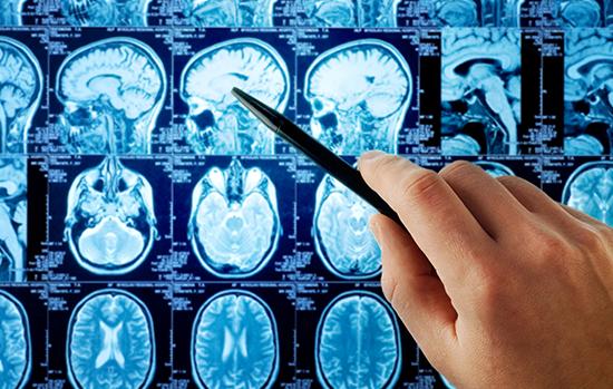 脑膜瘤手术医院排名-加拿大多伦多儿童医院