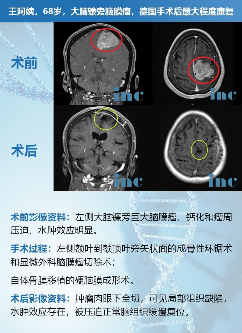 脑膜瘤案例-脑膜瘤检查