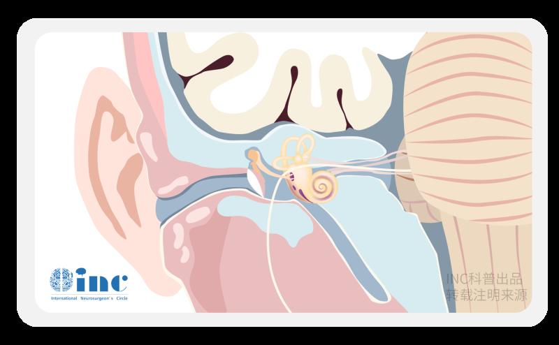 听神经瘤手术