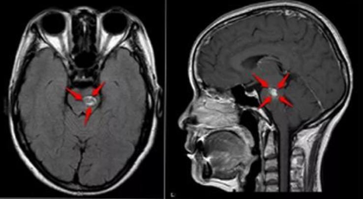 脑干海绵状血管瘤手术治疗