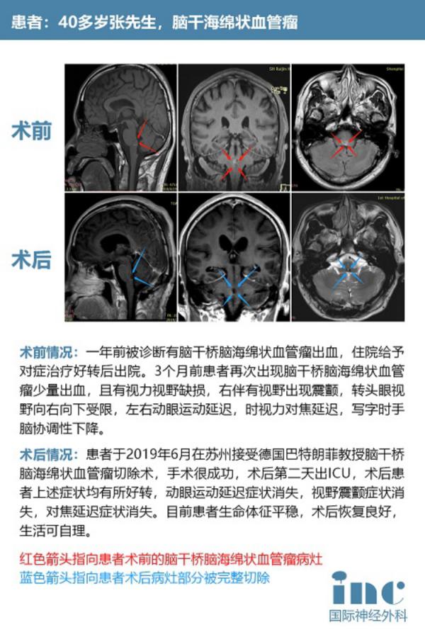 脑干海绵状血管瘤手术治疗案例