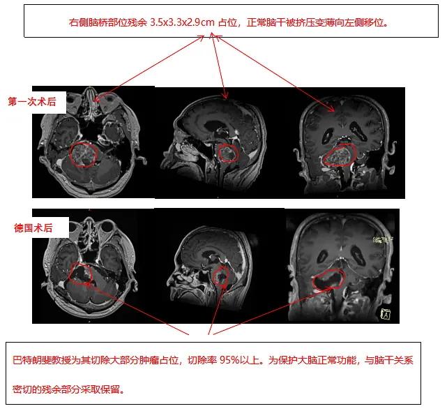 胶质瘤案例