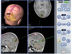 胶质母细胞瘤能治好吗?恶性脑肿瘤的纳米外科