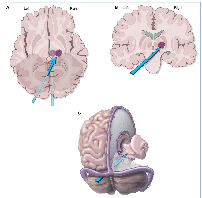 丘脑海绵状血管瘤