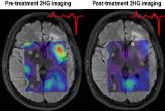 美国哈佛医学院新颖的成像方法揭示了针对脑胶质瘤的靶向治疗背后的机制