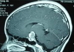 问:垂体瘤会缩短预期寿命吗?
