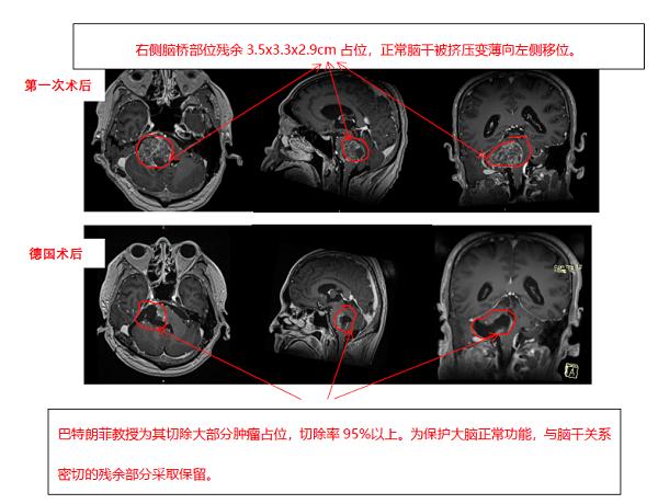 脑胶质瘤案例图片
