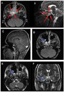 INC世界神经内镜技术的先行者:不开颅,脊索瘤手术从鼻子里做