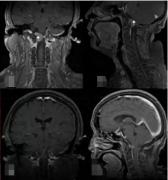 枕骨大孔区脑膜瘤危险吗?