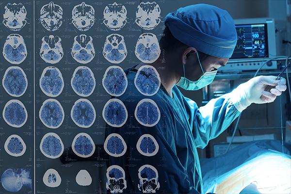 脑瘤早期症状