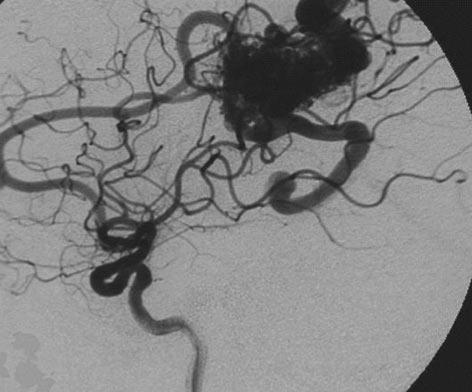 脑动静脉畸形-图2