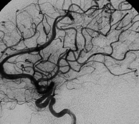 脑动静脉畸形治疗