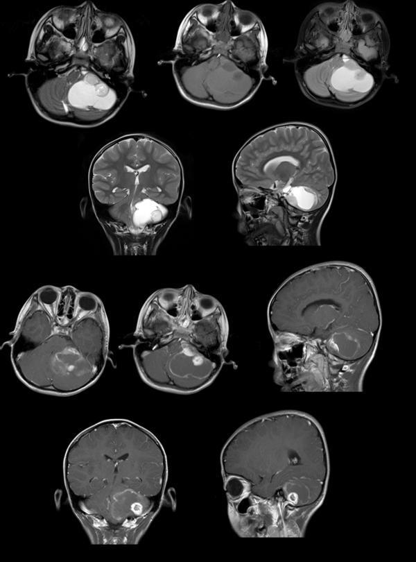毛细胞型星形细胞瘤严重吗