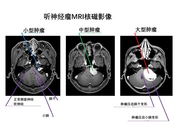 听神经瘤MRI