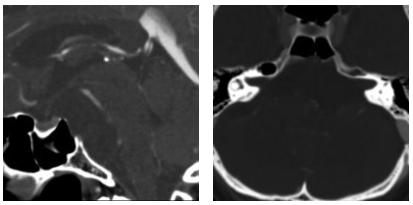 50岁男性脊索瘤患者MRI影像