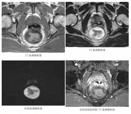 脊索瘤患者MRI影像