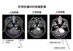 听神经瘤是大手术吗?早期手术可显著降低听力损失及面瘫