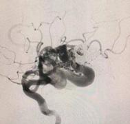 出国看病:脑动静脉畸形能痊愈吗?