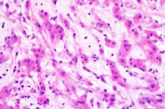 美国UCSF新研究发现:基因检测中的基因组测序发现罕见脑瘤的治疗方法