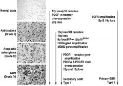 美国巴罗神经学研究所关于成人恶性胶质瘤遗传学的研究