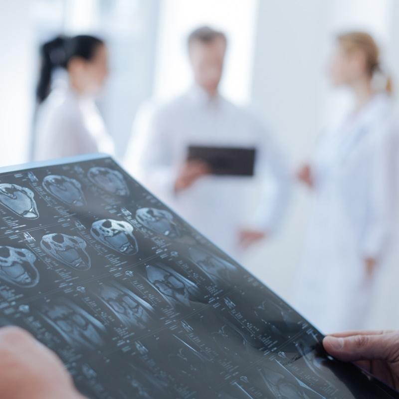 问:听神经瘤术后面瘫康复怎么做?