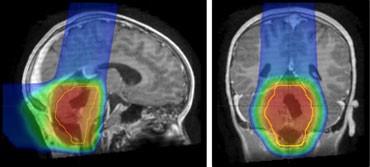 脑瘤质子治疗