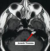 问:听神经瘤要治疗还是不治疗?